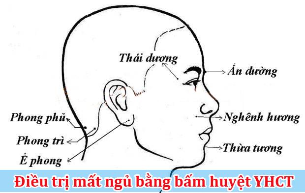 dieu-tri-mat-ngu-bang-y-hoc-co-truyen