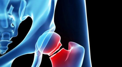 Bệnh loãng xương làm xương yếu đi và dễ gãy