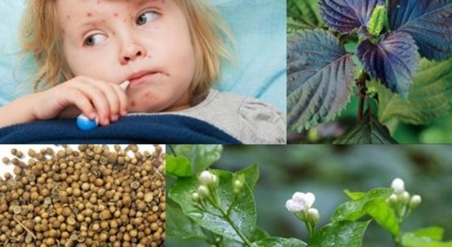 Bài thuốc cổ truyền trị bệnh sởi hiệu quả