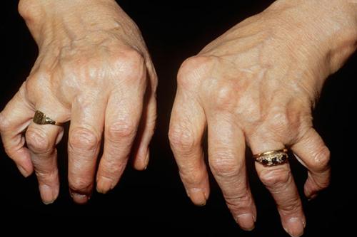 Những biến chứng nguy hiểm của bệnh viêm khớp dạng thấp
