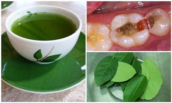 Các bài thuốc Đông Y có hiệu quả trong việc chữa vấn đề răng miệng