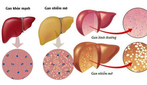 Những người mắc bệnh Gan nhiễm mỡ không nên ăn gì?