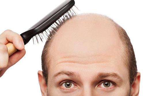 Trị hói tóc hiệu quả bằng bài thuốc y học cổ truyển