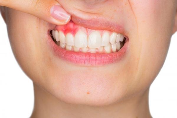 Các bệnh lý phổ biến về răng miệng