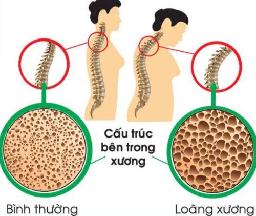 Loãng xương gặp phổ biến ở người già
