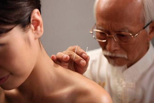 Phương pháp châm cứu chữa bệnh đau mỏi vai gáy