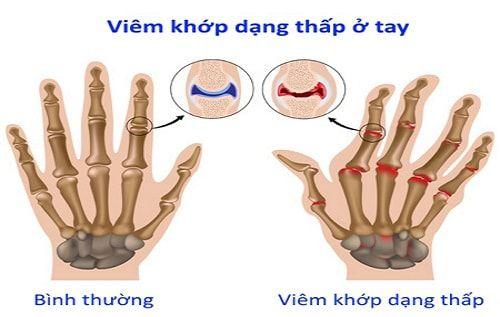 Bệnh viêm khớp dạng thấp ở tay
