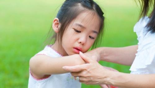 Những điều cần biết về bệnh thấp khớp ở trẻ