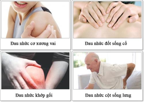 Bệnh lý về xương khớp thường gặp